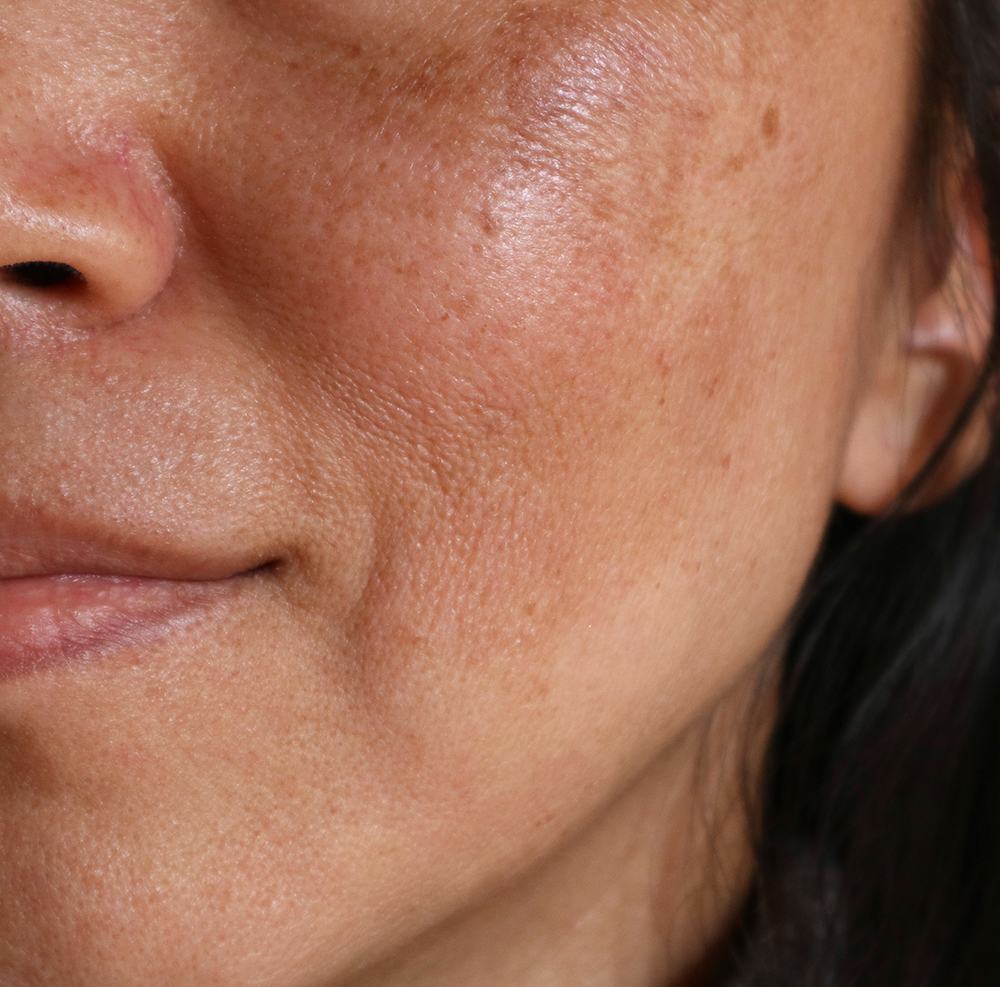 The Best Products To Treat Melasma How To Get Rid Of Dark Spots