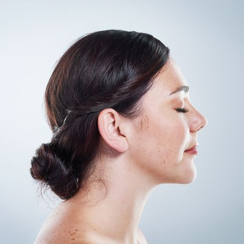 melasma chloasma causes, signs, treatment and prevention