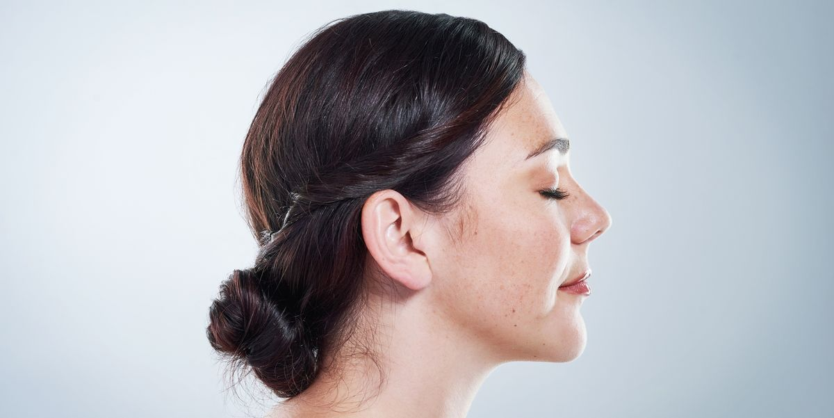 A dermatologist's guide to melasma
