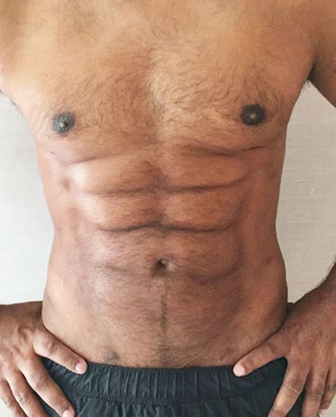 Plastic Surgeons Use Abdominal Etching To Create Six Pack