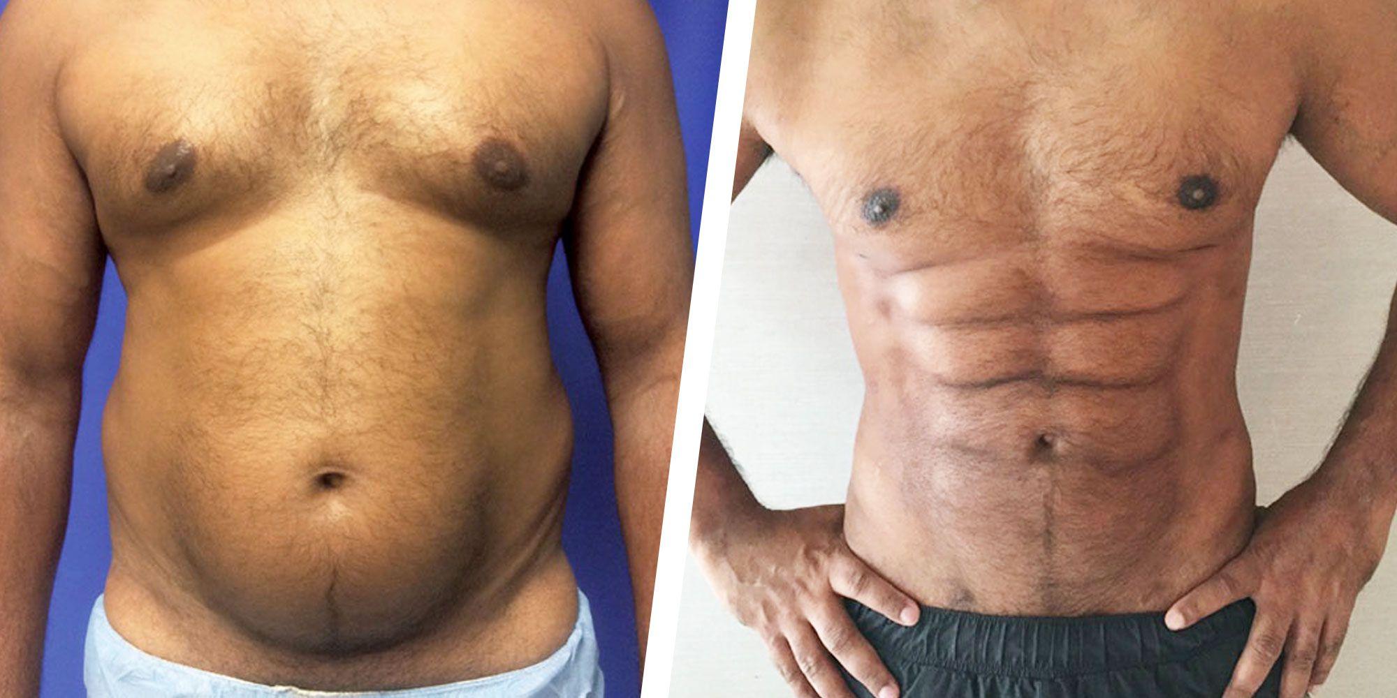Les chirurgiens plasticiens utilisent l'attache abdominale pour créer Six Packs   – abdomino