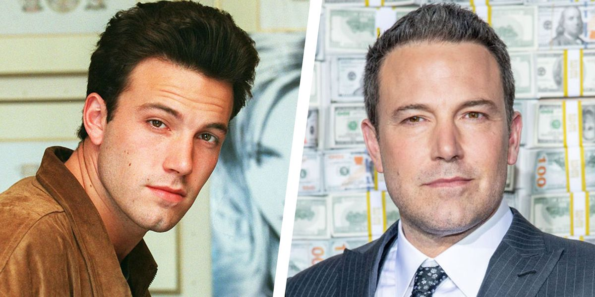 20 Male Celebrities Who Look Great With Thinning Hair