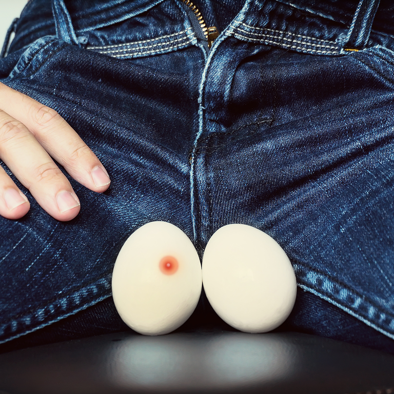 Here's Why You Have Pimples on Your Balls—and How to Get Rid of Them