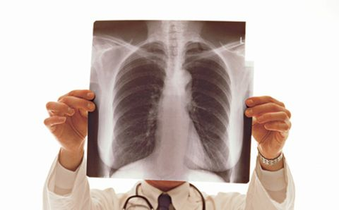 Doctor Holding Lungs X-Ray