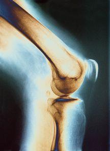Marathon Training Doesn't Hurt Knees, Even In Beginners