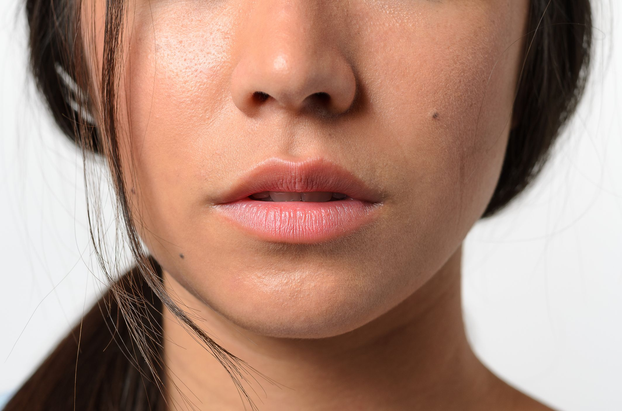 How To Get Rid Of Painful Pimples In Your Nose