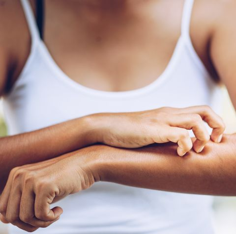 how to stop bug bites from itching