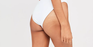 missguided stretch marks