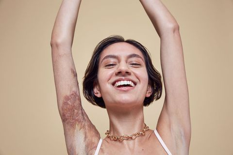 Missguided In Your OwnSkinCampaign
