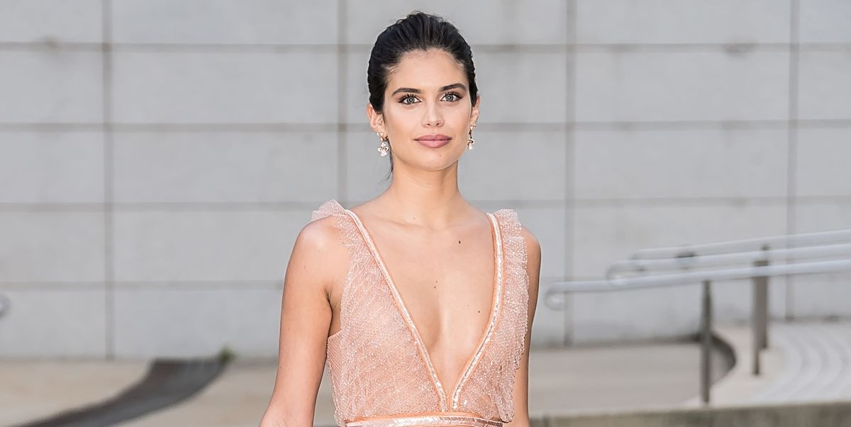 Victorias Secret Angel Sara Sampaio Suffers From Trichotillomania