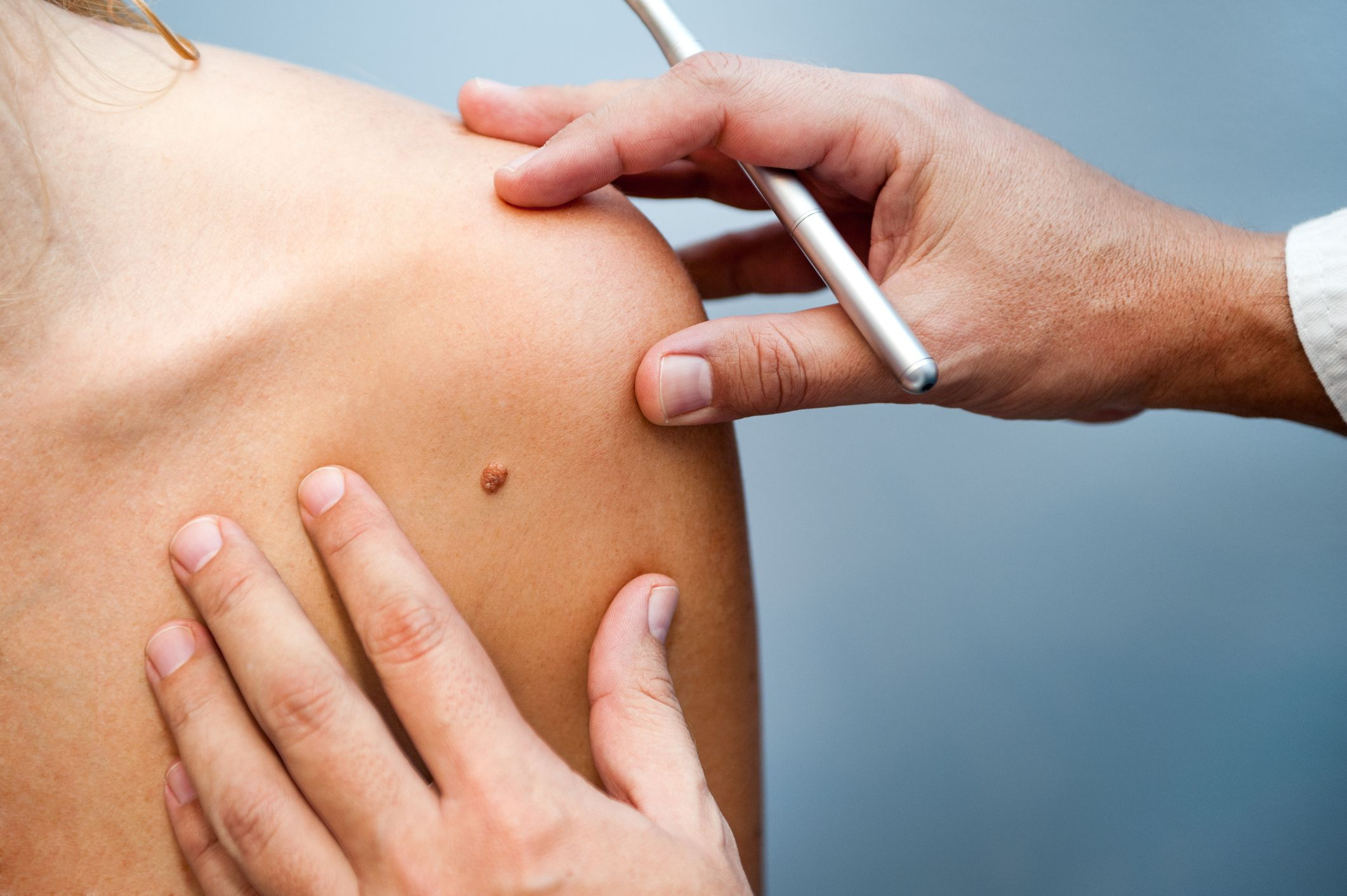 Skin Cancer How To Check Your Moles And Spot Cancer Signs Early