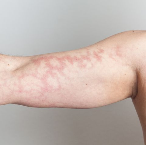mottled skin causes and treatments