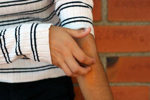 itching eczema prone skin