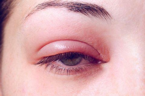 長針眼怎麼辦?會傳染嗎?麥粒腫原因、舒緩和預防方法一次弄清!