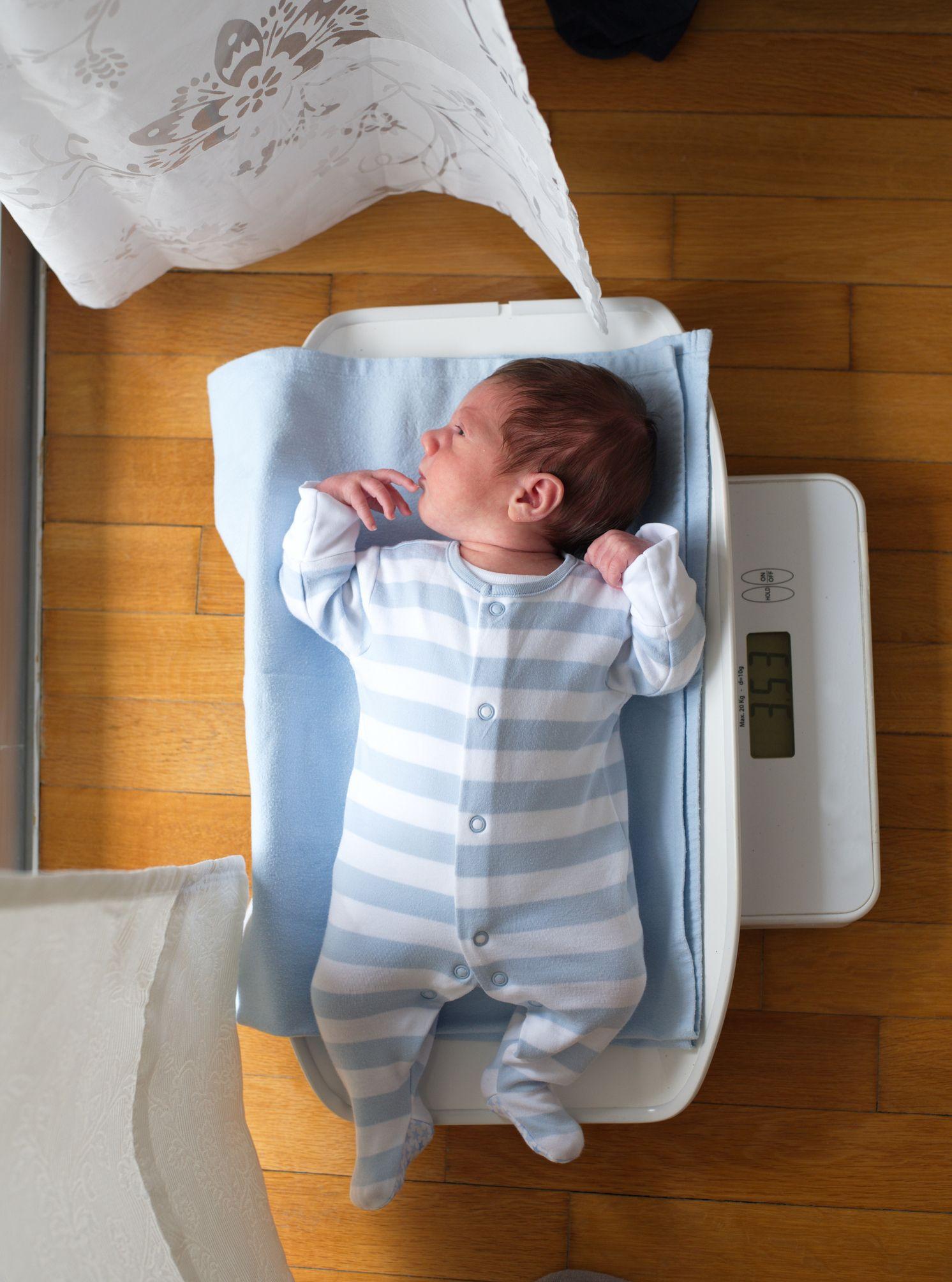 perdida de peso bebe recien nacido