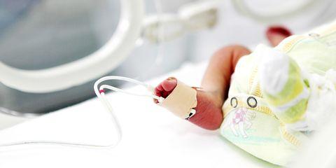newborn baby, premature baby