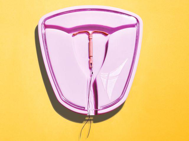 iud strings curled around cervix