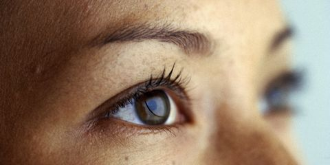 Are Your Eyelids Doomed to Sag?