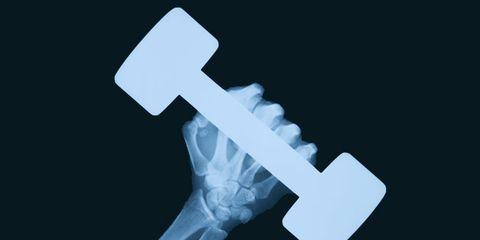 Bone, Medical radiography, X-ray, Symbol, Medical, Cross, Radiography,