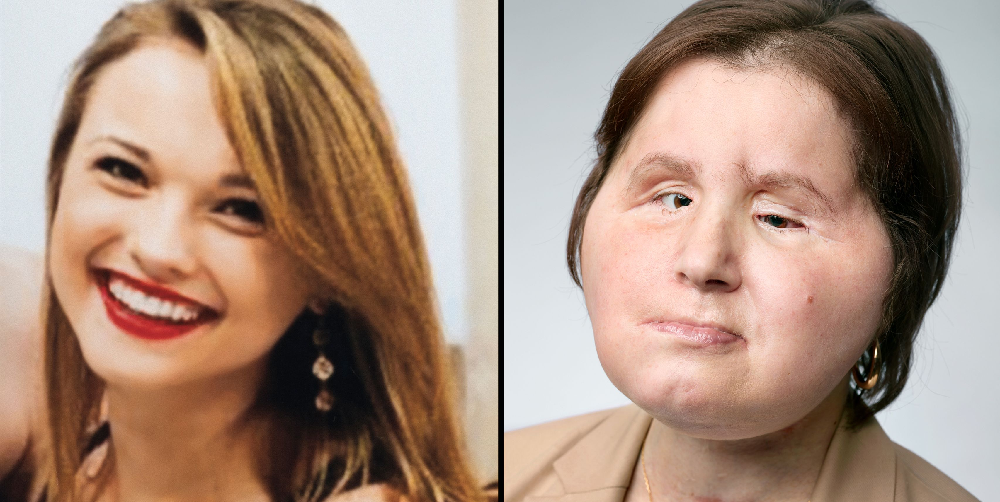 001