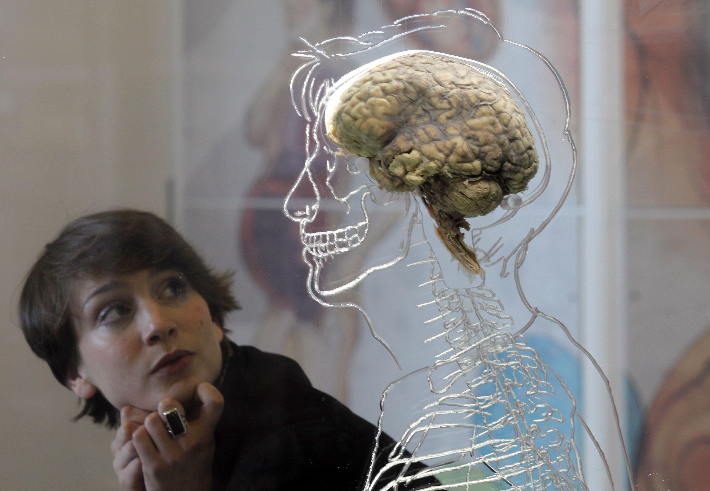 Restauran las funciones cerebrales de un cerdo... muerto 4 horas antes