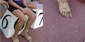 niña, 11 años, gana, tres oros, pies, vendados, filipinas