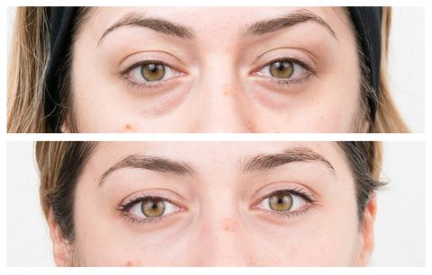 Everything you need to know about non-surgical eye bag removal