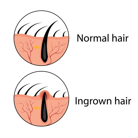Normal and ingrown hair vector illustration
