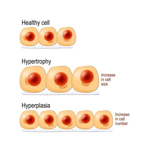 What Is Hypertrophy? How Muscle Hypertrophy Helps Build Size.