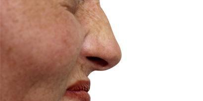 Lip, Cheek, Skin, Chin, Forehead, Eyebrow, Jaw, Eyelash, Organ, Neck,