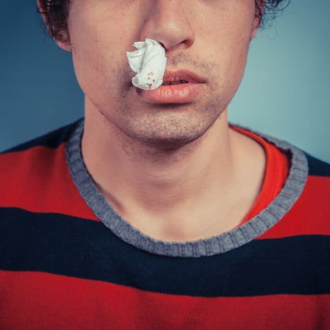 nosebleeds causes, treatment and medication