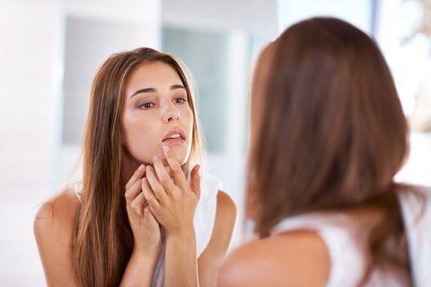 acné en verano, por qué aparece y consejo para evitarlo