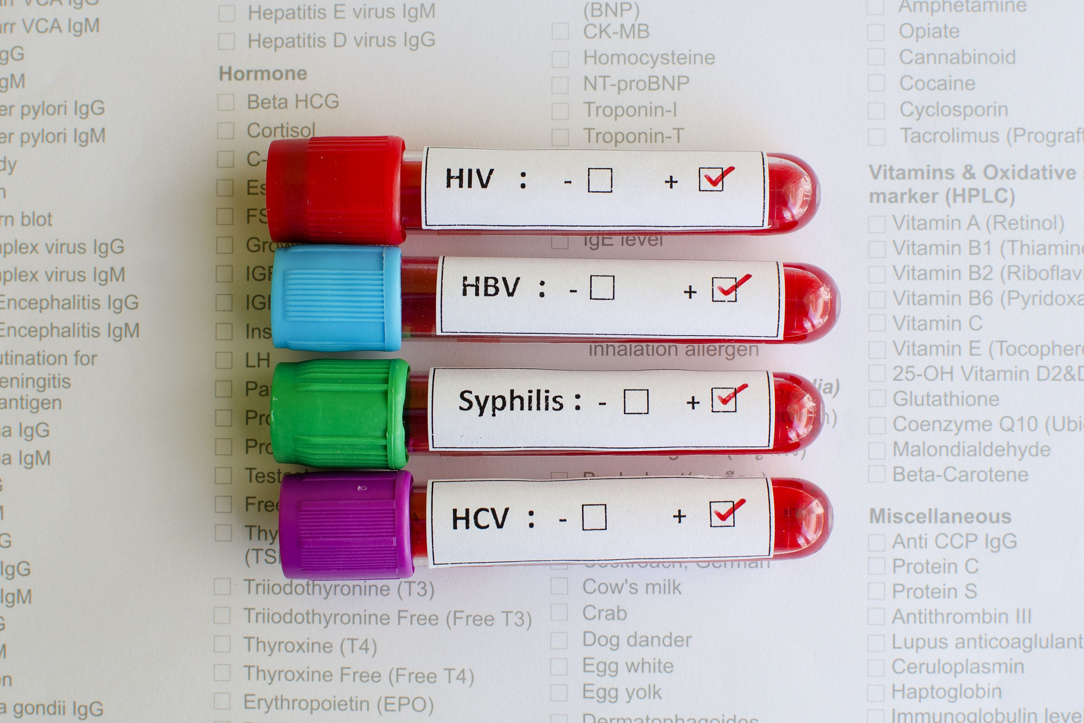 Online STI tests: do they work, are they safe and where can