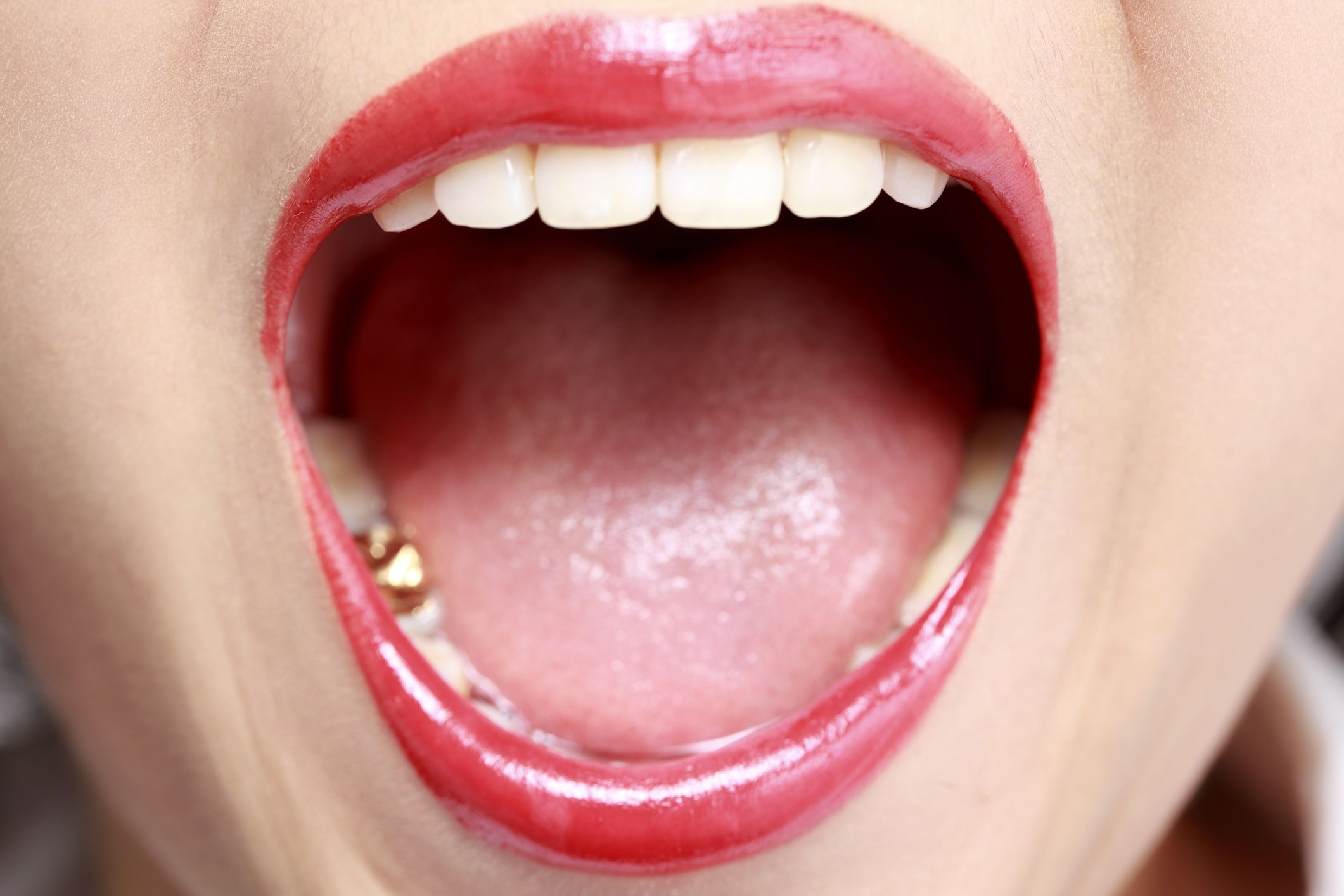 Daktarin Oral Gel Miconazole