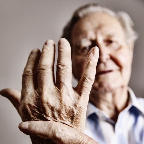Osteoarthritis is a disease of the joints affecting almost everybody as they get older