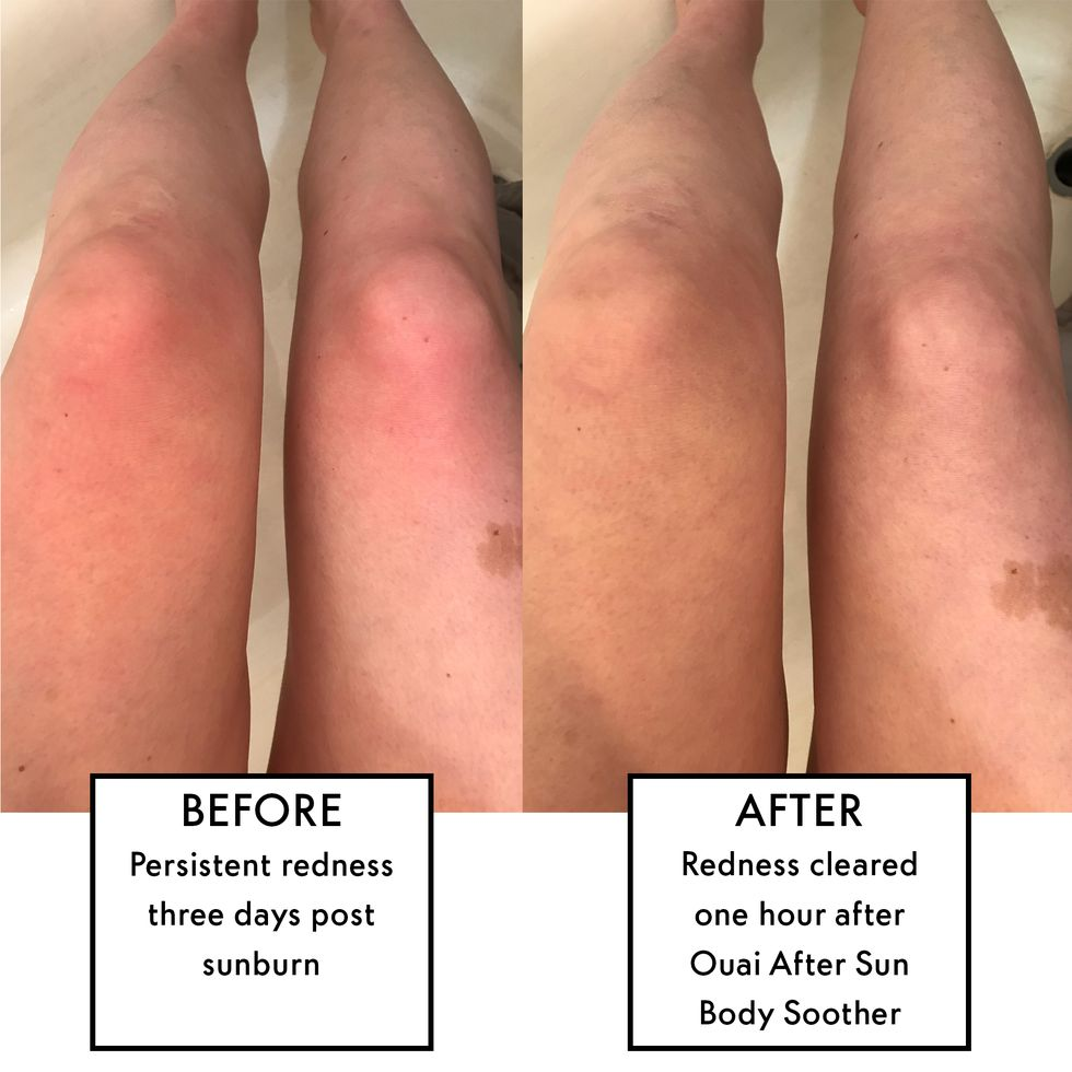 Ouai's New After Sun Body Foam Completely Reversed Redness from My Sunburn