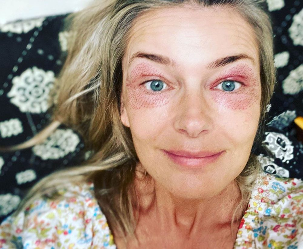 Paulina Porizkova Shows Off Her Eyes After Plasma Pen And Ultherapy Cosmetic Treatments