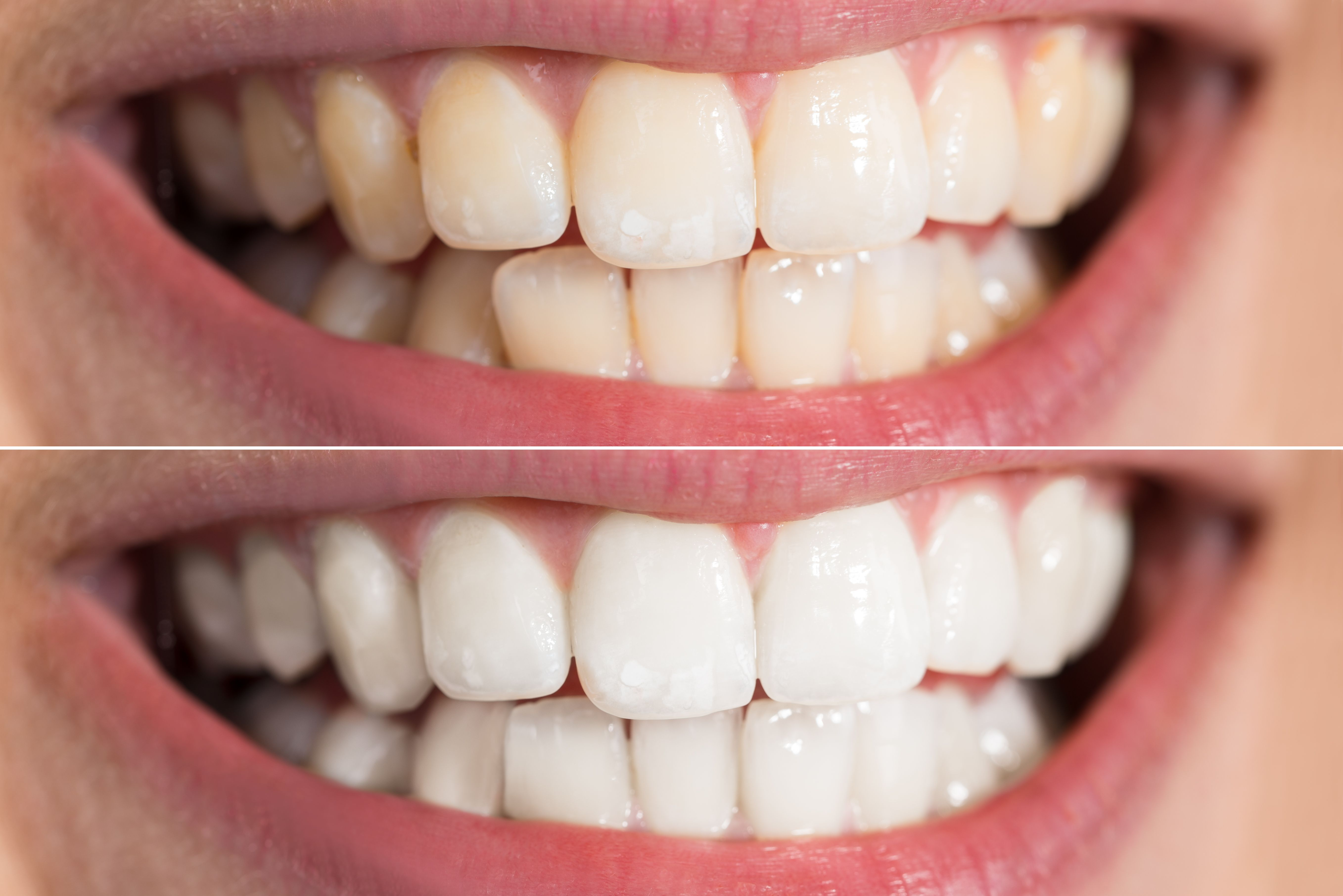 Teeth Whitening Is It Safe And Which At Home Kits Work