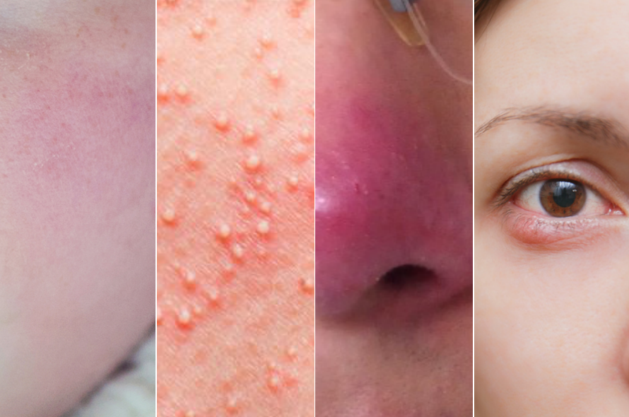 酒糟肌,酒糟鼻,玫瑰疹,過敏,敏感,遮瑕,保養,防曬,泛紅,發癢,低敏,beauty