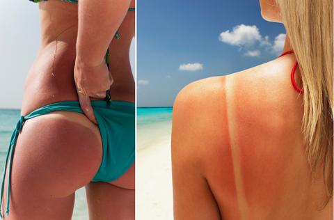 防曬,抗老,美白,保濕,物理防曬,化學防曬,UVA,UVB,寬頻防曬,皺紋,黑斑,曬傷,防曬乳,防曬係數,SPF,beauty,PA
