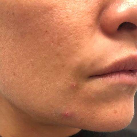 Elena Miglino pimple cover up step 1