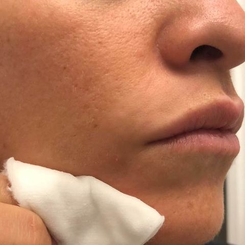 Elena Miglino pimple cover up step 2