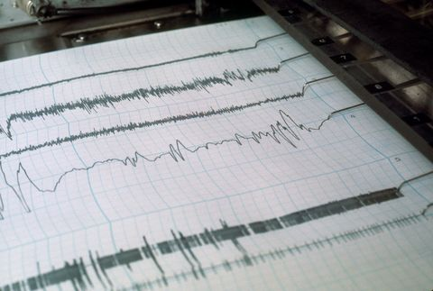 Polygraph readout of a patient participating in a sleep study.