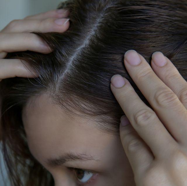 20代にも急増! 専門家が若白髪になる原因と対処法を解説