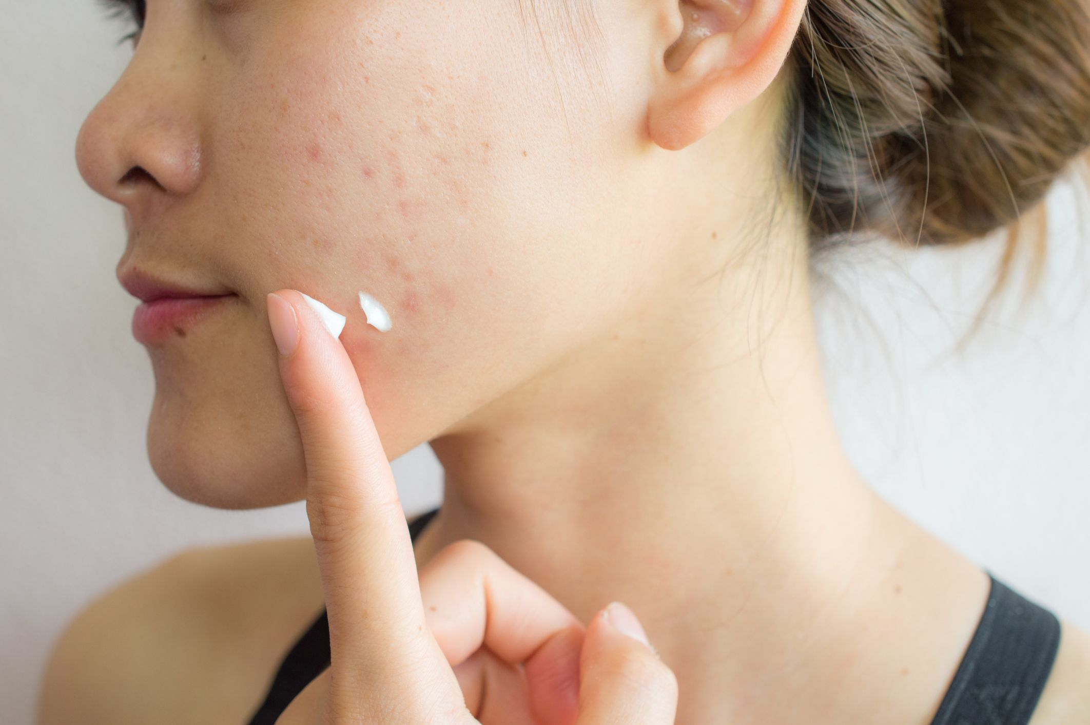 10 Best Moisturizers for Oily, Acne-Prone Skin, According to Dermatologists