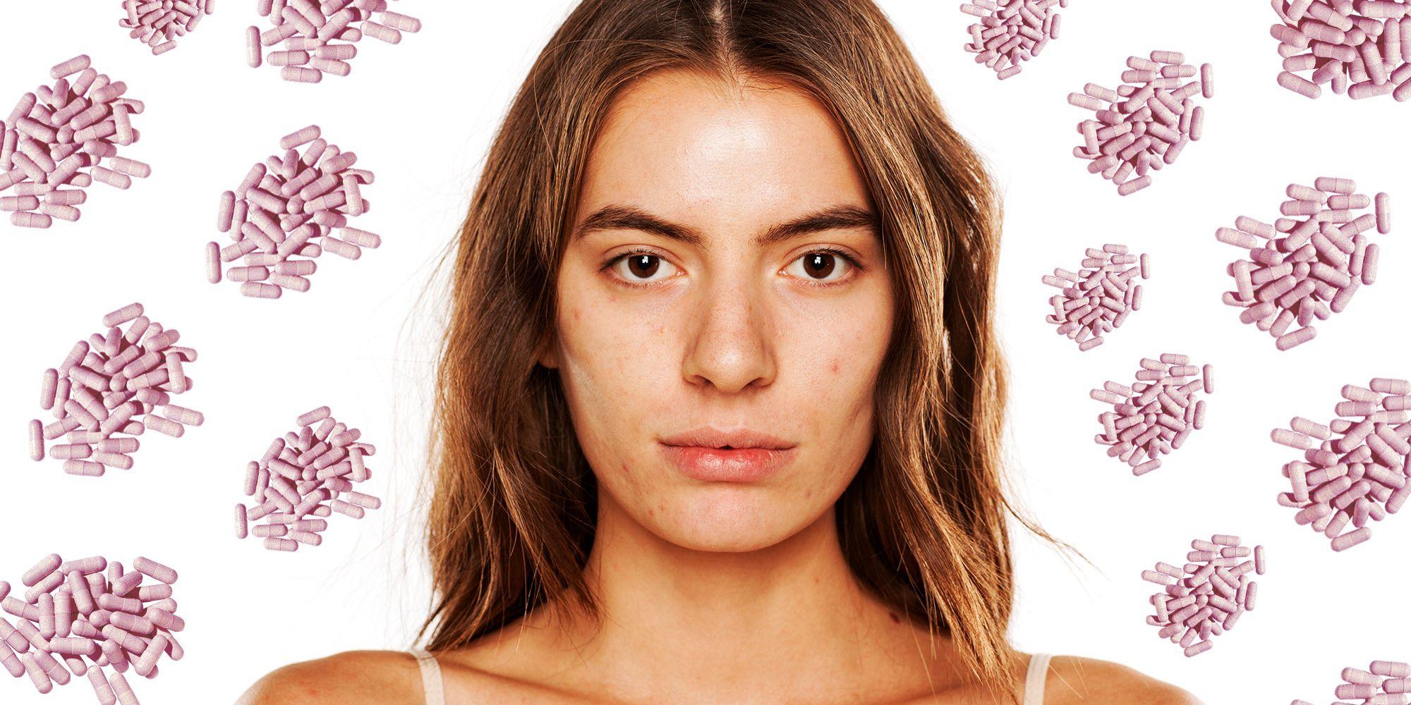 probiotics help acne