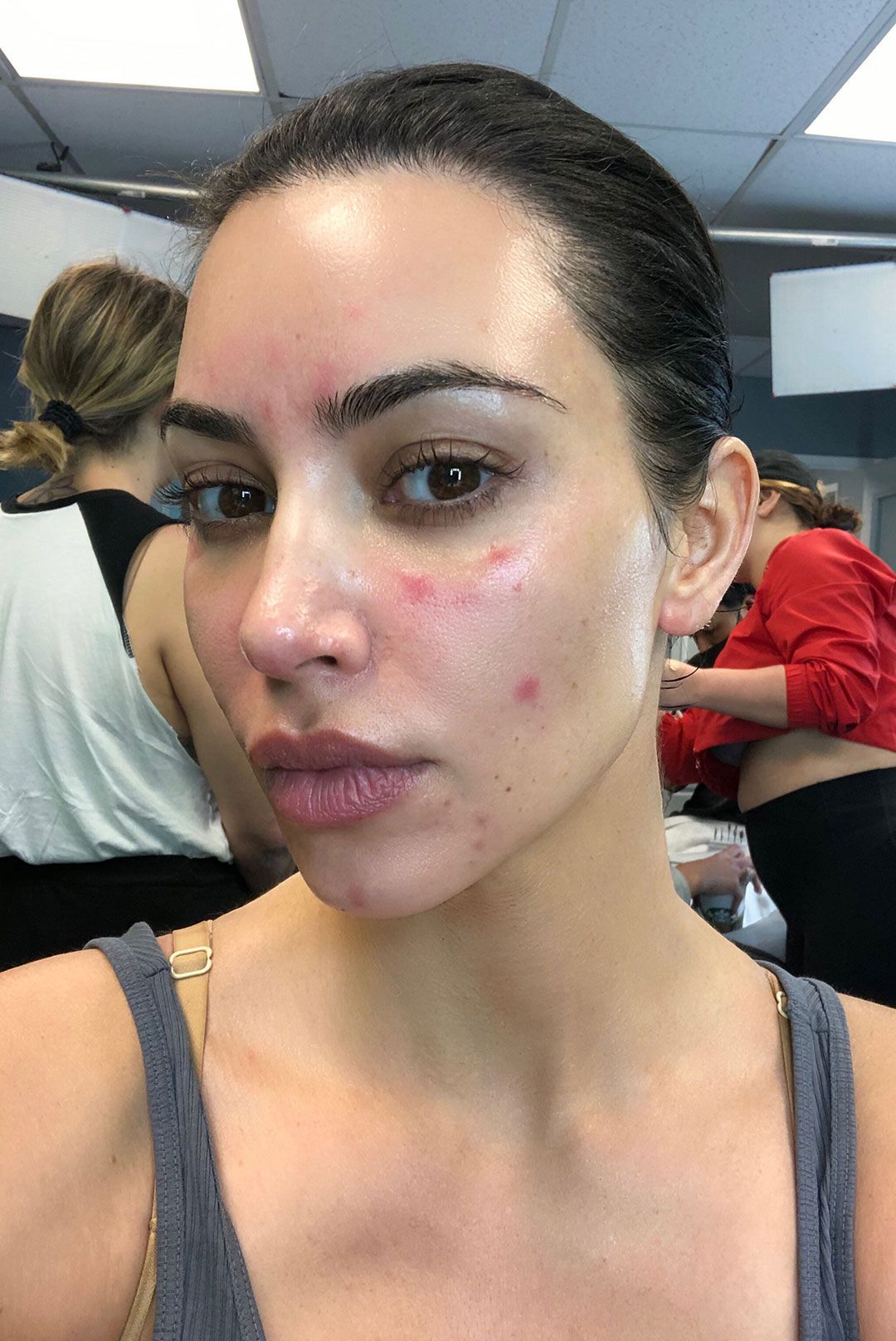 Kim Kardashian West's Advice to Anyone Living With Psoriasis Is Actually Pretty Solid