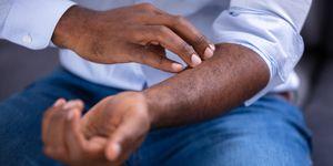 Psoriasis: treatment, causes, symptoms