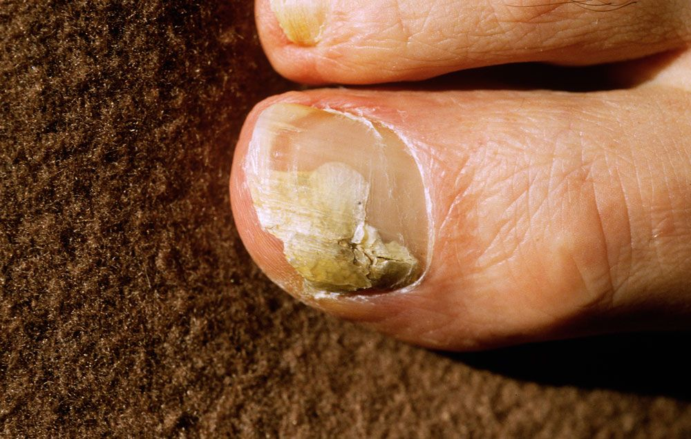 Treating nail fungal infections naturally