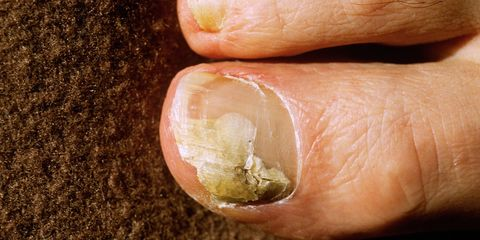 6 Natural Ways to Defeat Toenail Fungus | Runner\'s World